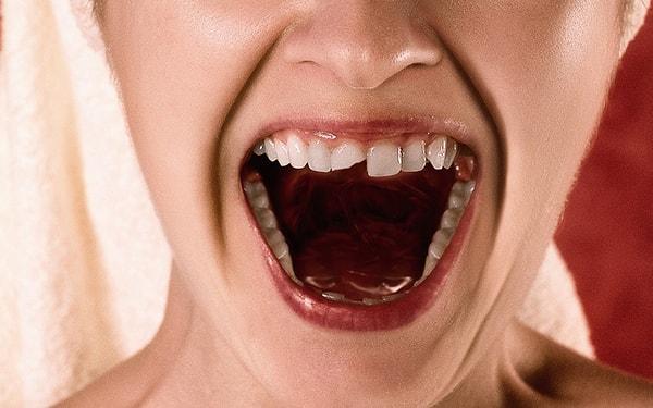Urazy zębów stałych